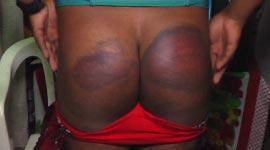 Shemale prostituees zijn mishandeling door politie zat (schokkende beelden)...